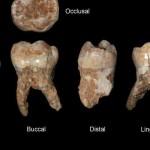 400000yearold teeth